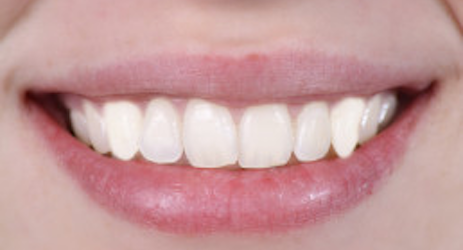 After-Porcelain Veneers & Crowns