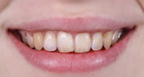 Before-Porcelain Veneers & Crowns