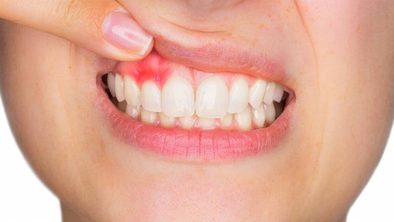 Periodontal Disease: Learn The Signs & Treatment