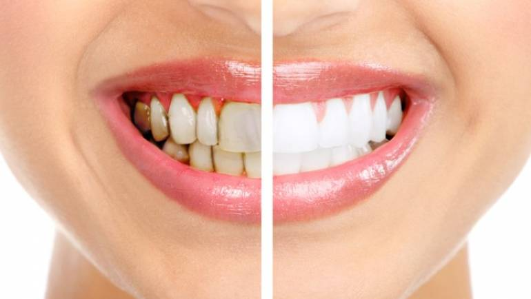 Is Teeth Whitening Safe for Me? – Ask Your Cosmetic Dentist in Torrance