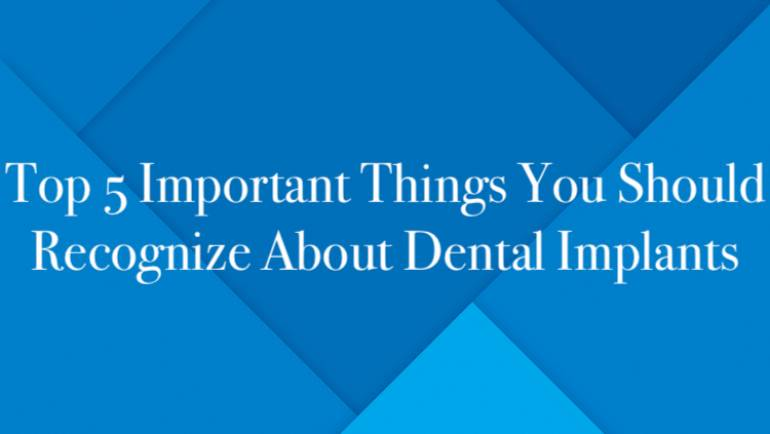 Top 5 Important Things You Should Recognize About Dental Implants